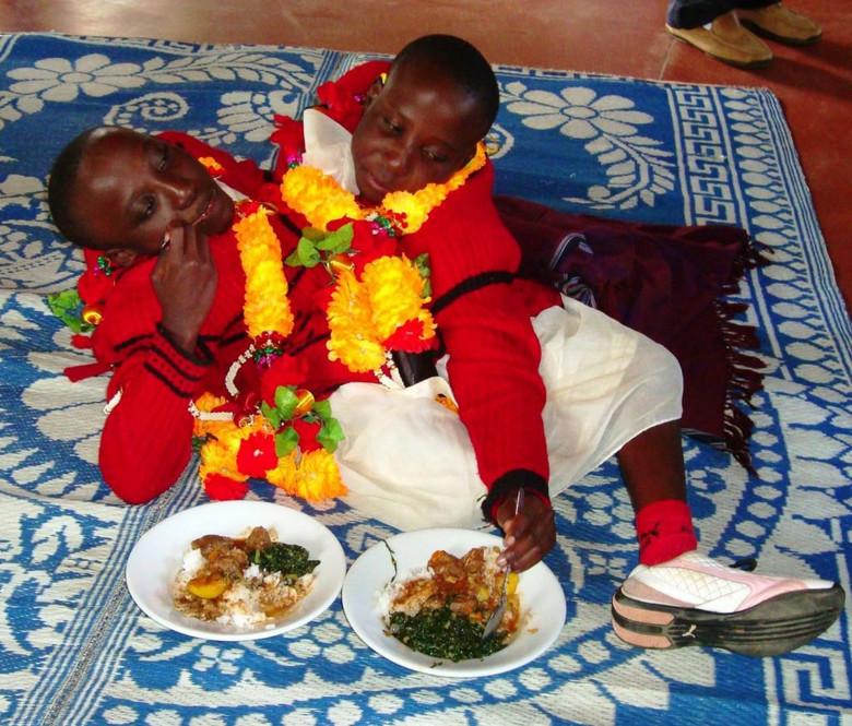 Танзанийские сиамские близнецы с одним телом на двоих скончались в 21 год (6 фото)