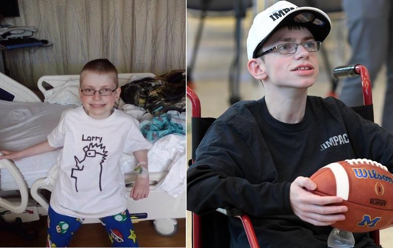 Родившийся с кучей патологий и почти всеми органами наружу мальчик отпраздновал свое 17-летие (7 фото)
