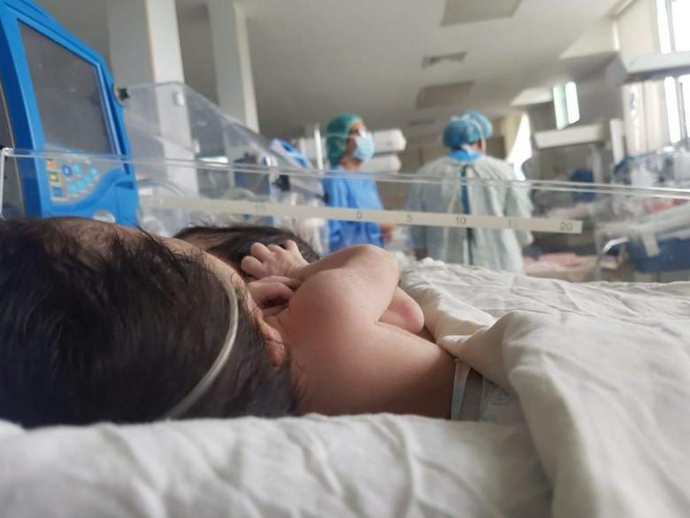 В Гондурасе сиамских близнецов с одним сердцем на двоих решили не разделять из-за рисков