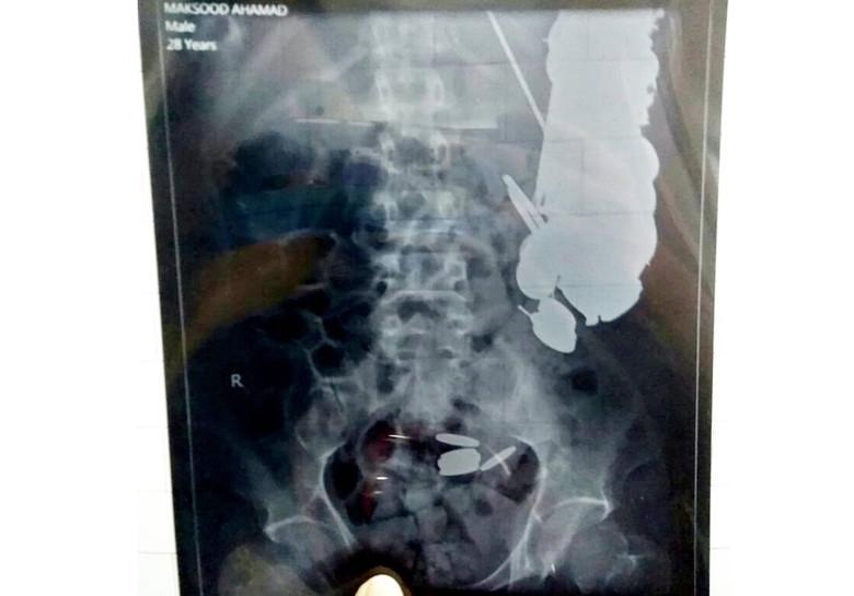 Хирурги вытащили из мужчины 7 килограммов металлических изделий (3 фото)