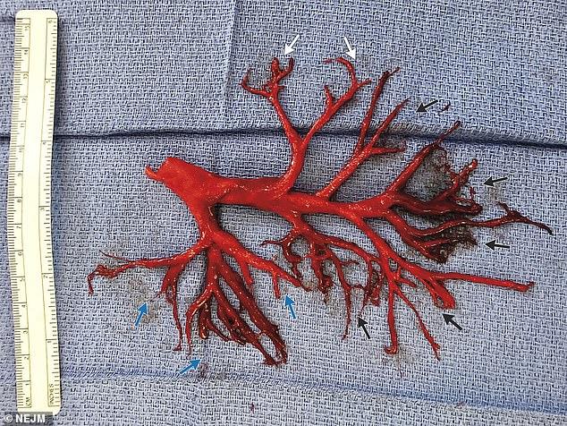 Медицинский кошмар: Пациент выкашлял часть бронхов