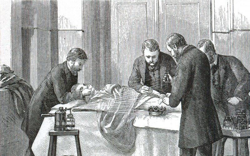 Тайны истории: 10 шокирующих фактов о викторианской хирургии