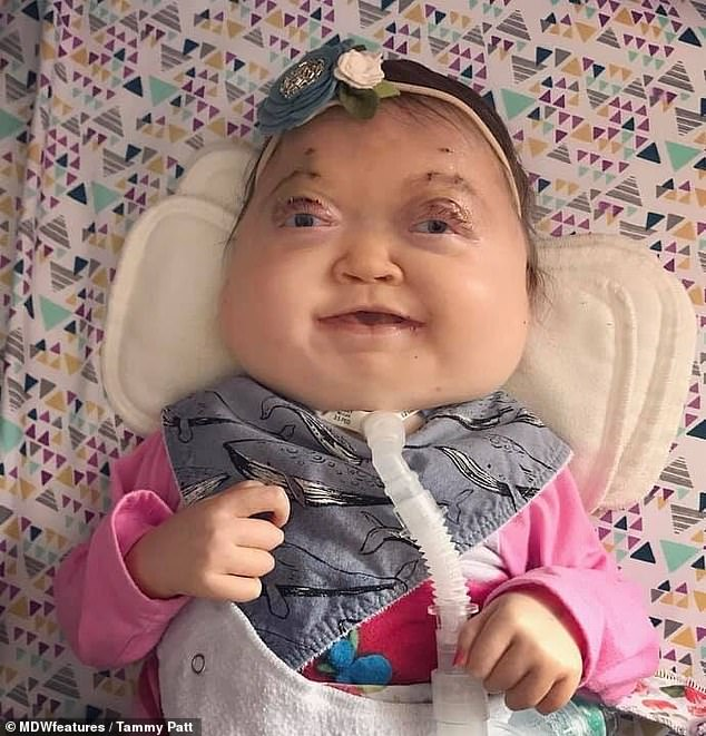 В США родился младенец с очень редкой аномалией черепа