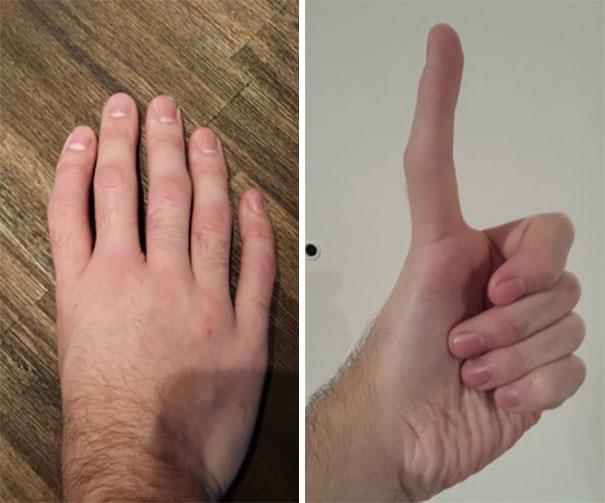 Люди поделились фотографиями своих редких физических аномалий