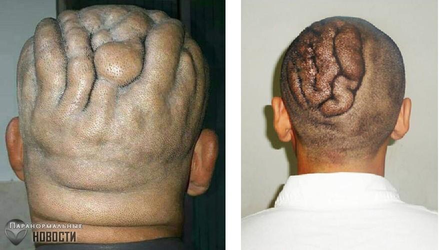Из-за редкого расстройства голова мужчины покрылась морщинистой сеткой