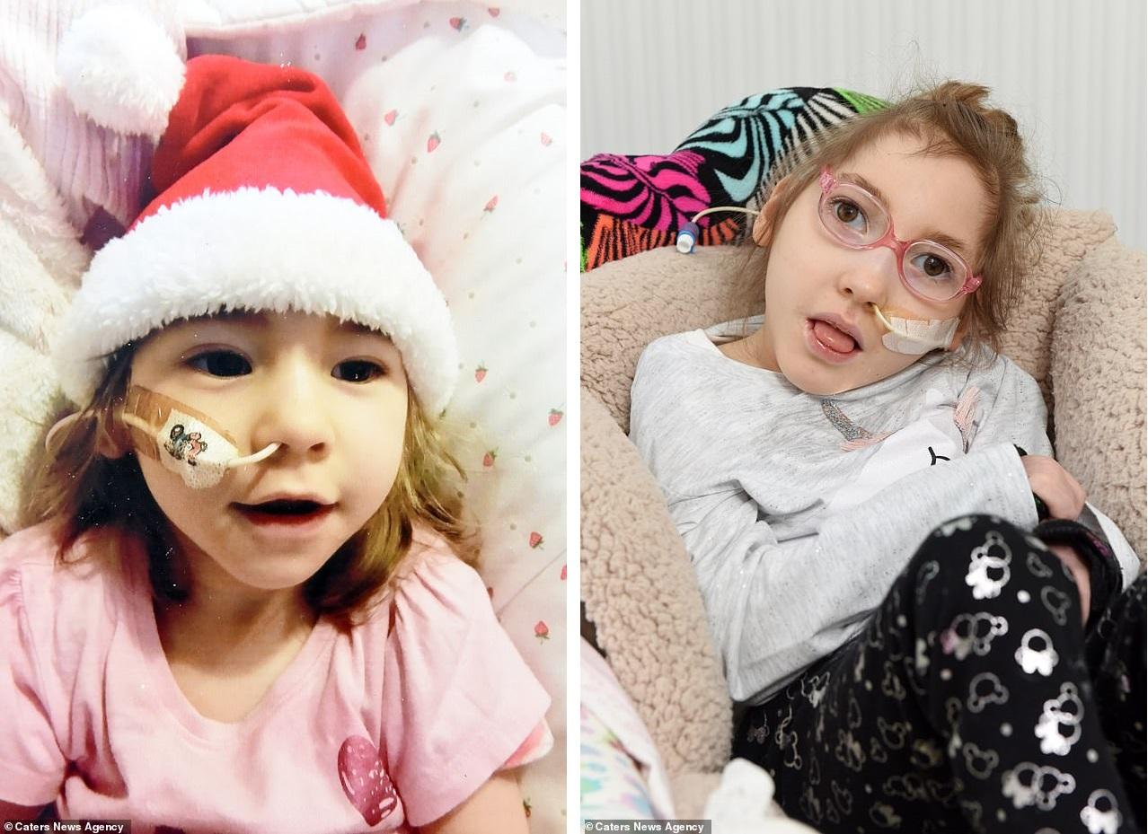Девочке, родившейся без мозга, исполнилось 6 лет