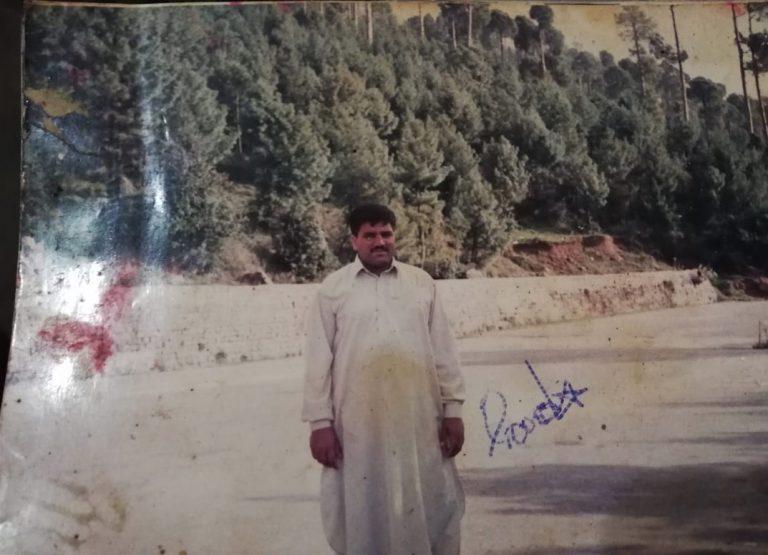 Пакистанец с громадной ногой согласен на ампутацию (Осторожно! Шокирующий контент 18+)