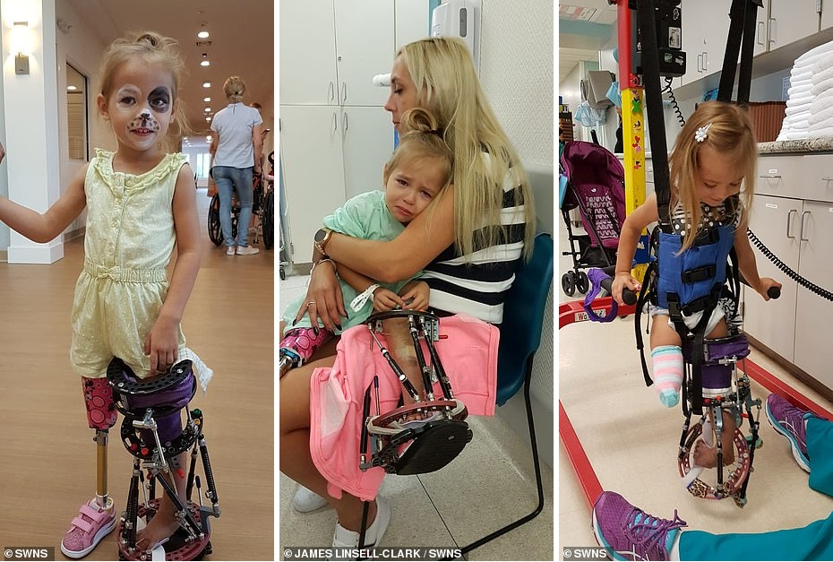 Девочка, рожденная с вывернутыми ногами, теперь может ходить как обычные люди