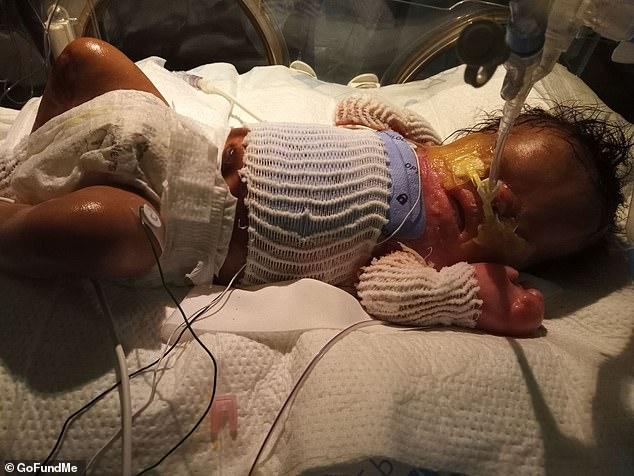 В США родился младенец без кожи