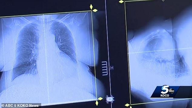 Собачье лекарство от глистов внезапно удалило раковую опухоль с метастазами