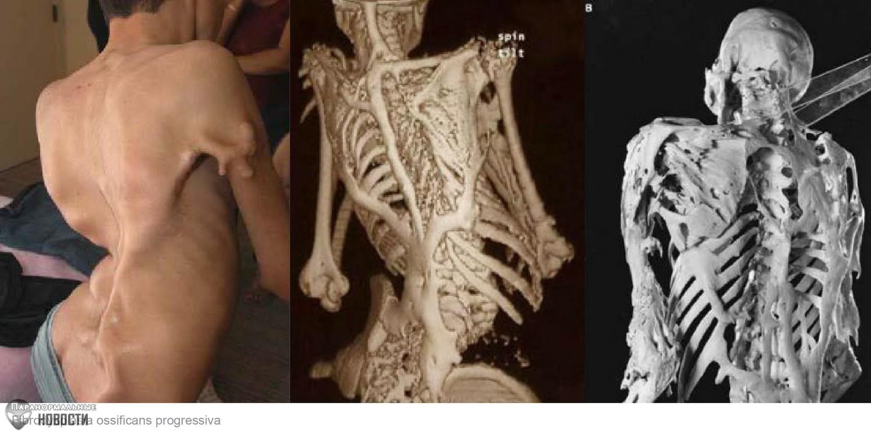 Мышцы, связки и сухожилия этой девушки постепенно превращаются в кости