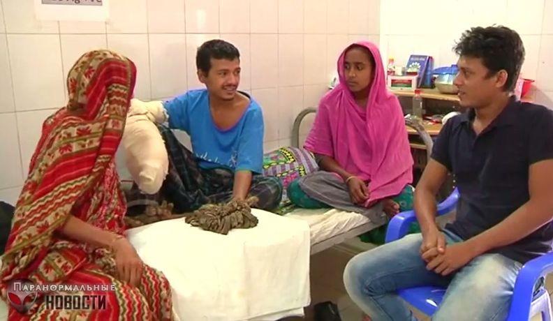 Человек-дерево из Бангладеш готов отрезать руки, лишь бы избавиться от страшных наростов