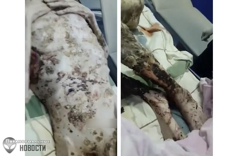 Живой труп: Мужчина со сломанной спиной месяц пролежал в медвежьей берлоге и выжил (Осторожно! Шокирующий контент! 18+)