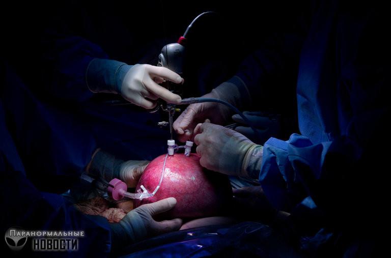 Как живет мальчик, которому еще в утробе сделали рискованную операцию на позвоночнике