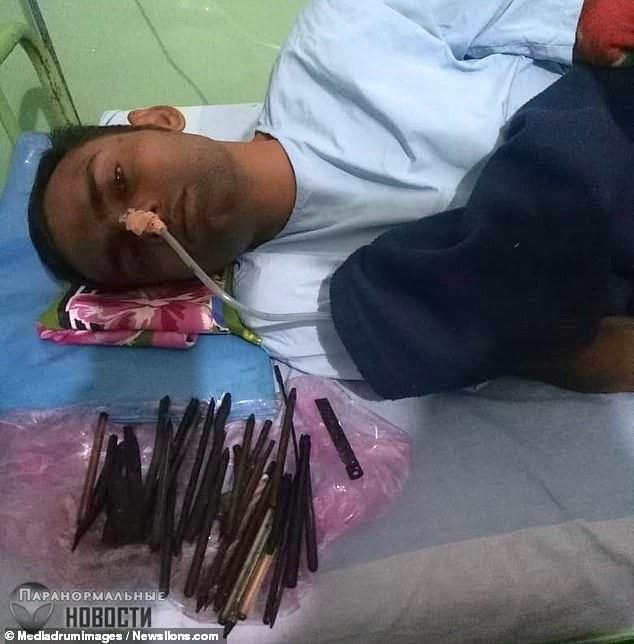 Из индийца вытащили 33 предмета, в том числе бритву и отвертку