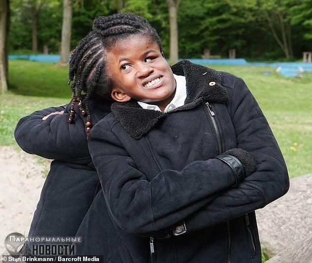 «Невозможно оперировать»: В Амстердаме живут сестры-близнецы с общей головой