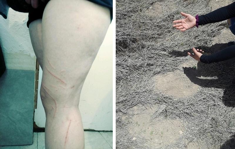 В Техасе на женщину напало странное волосатое существо и сильно расцарапало