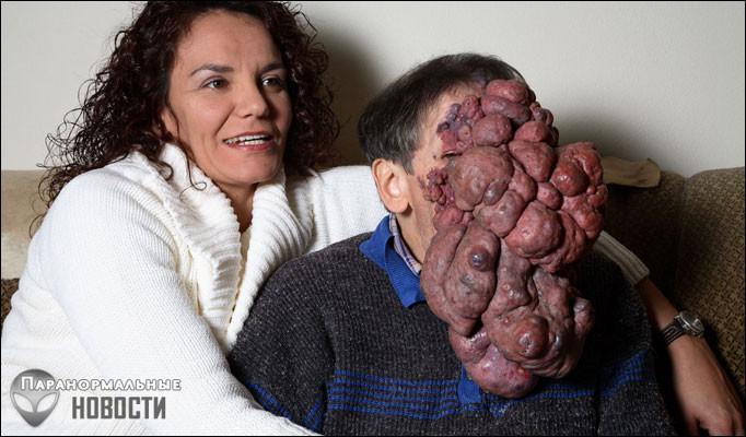 Самые странные объекты, выраставшие в человеческом теле