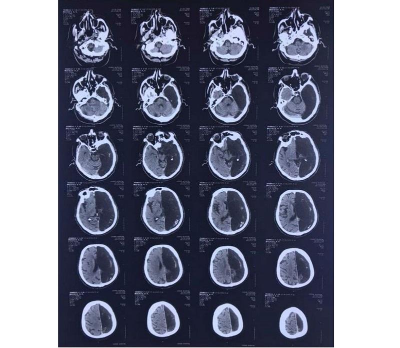 «Ничего не беспокоит»: Житель Подмосковья 60 лет прожил с половиной мозга