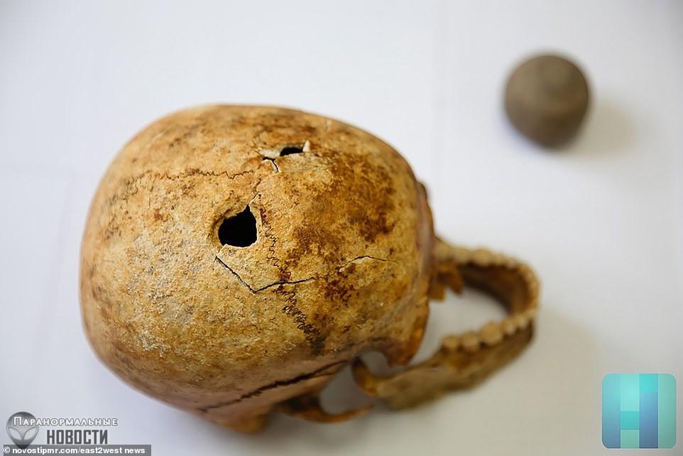 Дырки в черепе: В древней Молдавии жили искусные хирурги