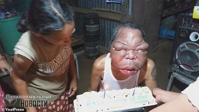 Из-за странной болезни лицо филиппинца увеличилось в два раза