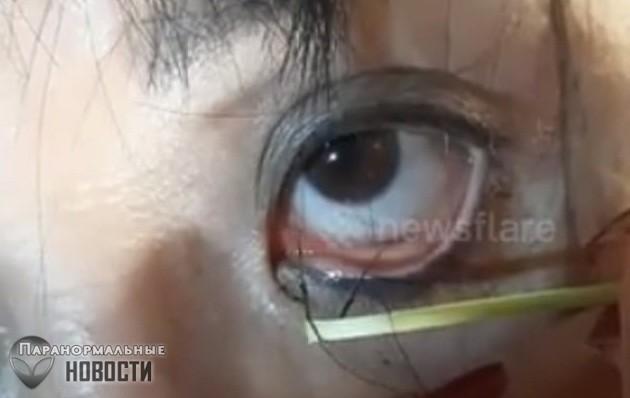 Из глаза женщины вытащили десятки червей-паразитов