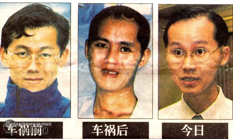 В Сингапуре прославился мужчина, у которого половина мозга вытекла на дорогу во время ДТП