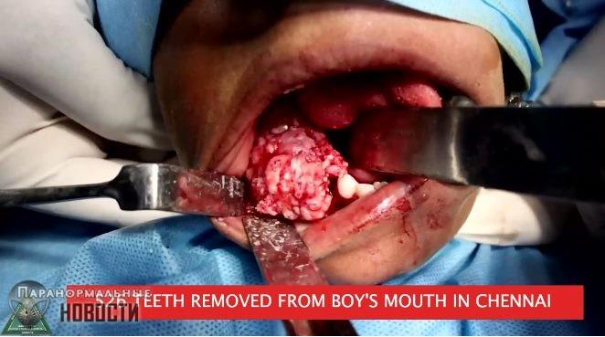 Изо рта семилетнего мальчика удалили ...526 зубов