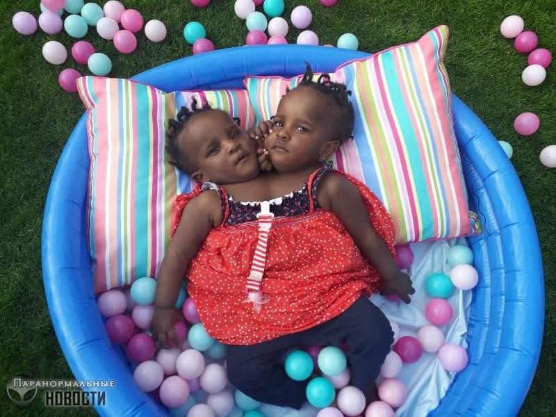 Марием и Ндийе - близнецы с двумя головами на одном теле