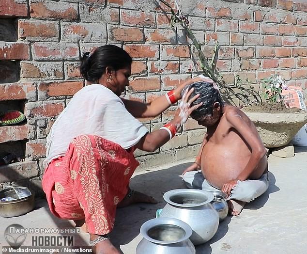 У жителя Индии без остановки растет желудок