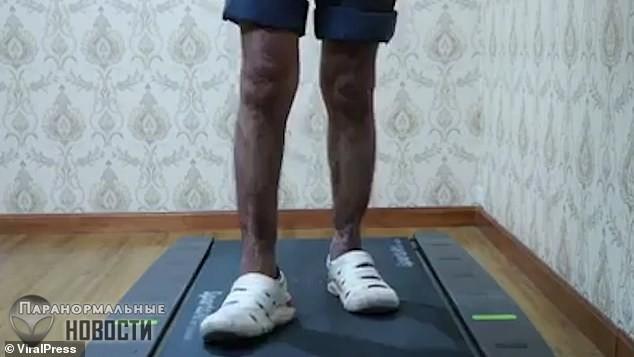 Мужчине пришили отрезанные ноги и он научился нормально ходить