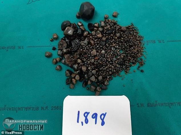 В Таиланде из пациентки вытащили почти 2 тысячи желчных камней
