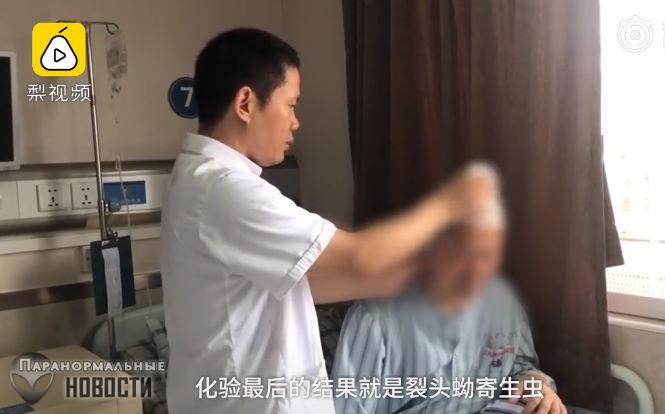 В голове китайца 30 лет жил 10-сантиметровый червь