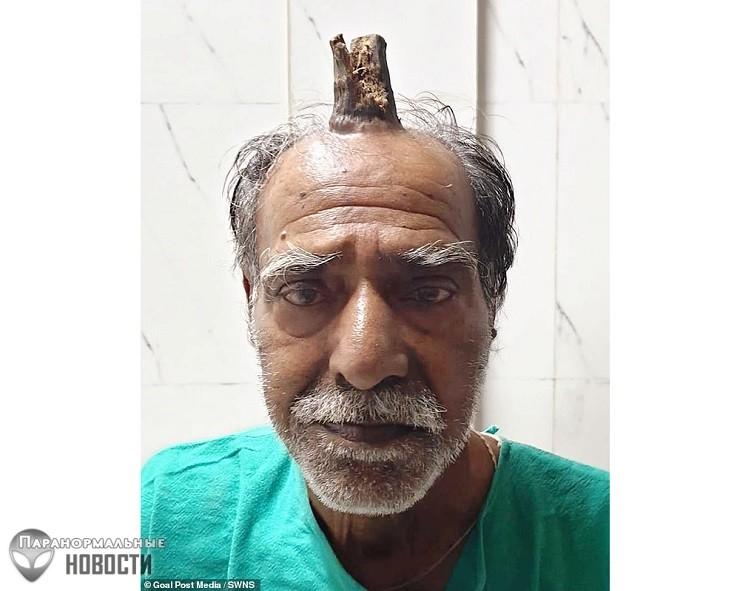 На лбу пожилого индийца вырос «дьявольский» рог