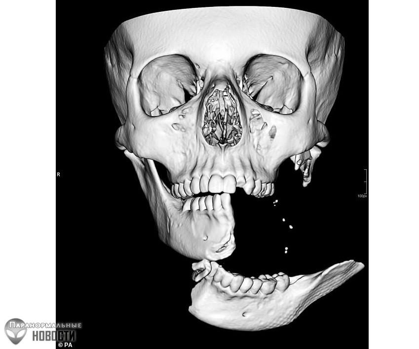 Хирург совершил чудо, оставив после сломанной и отсоединенной челюсти лишь несколько шрамов