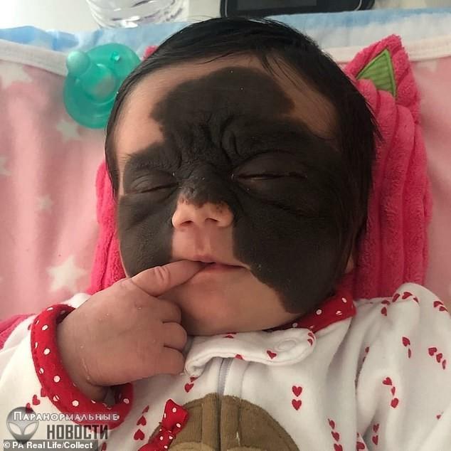 Российские врачи взялись лечить девочку из США с «маской Бэтмена» на лице