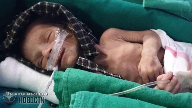 Мужчина пришел на кладбище похоронить своего умершего младенца и нашел там ...живого
