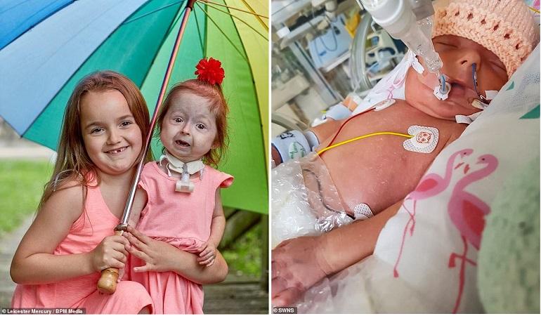 Старушка с рождения: Эта девочка единственная в мире с подобной болезнью
