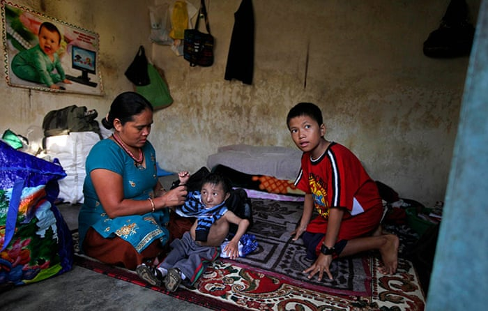 Самый маленький человек в мире скончался в 27 лет от пневмонии