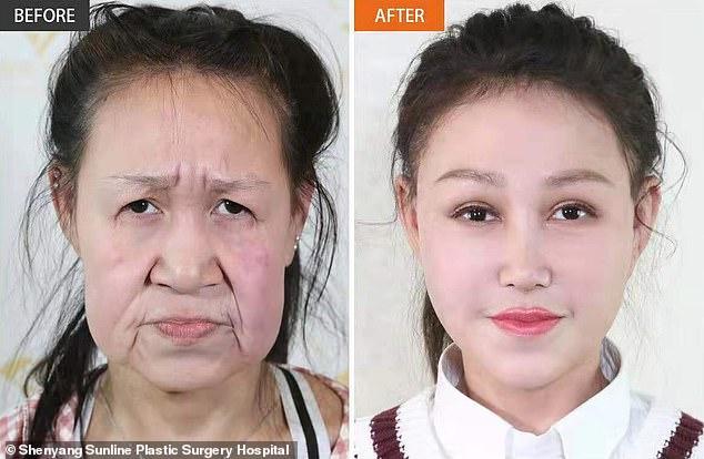 15-летней «старушке» из Китая подарили новое лицо