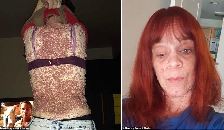 «Меня оскорбляют и считают заразной»: Женщина с тысячами опухолей на теле боится лишний раз пройти по улице