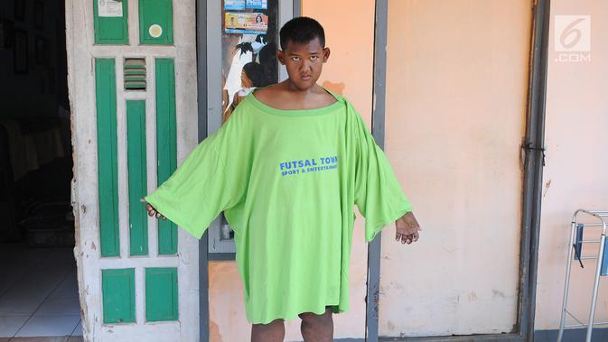 Как сейчас выглядит бывший самый толстый ребенок в мире