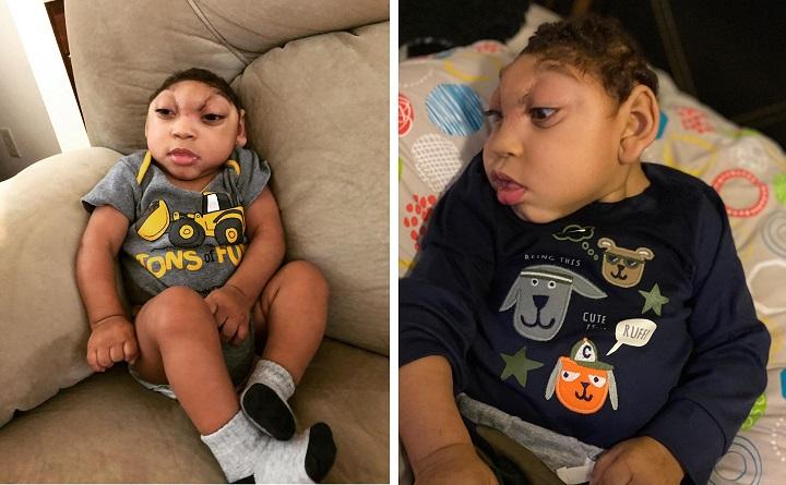 Еще один выживший ребенок без мозга обнаружен в Техасе