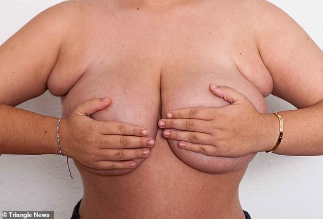 У 22-летней британки выросло четыре груди вместо двух