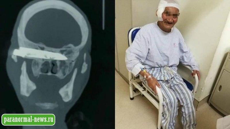 Мужчине вонзили в голову 10-сантиметровый нож и он проходил с ним 26 лет