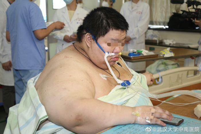 Самоизоляция за 5 месяцев превратила китайца в чудовищного толстяка