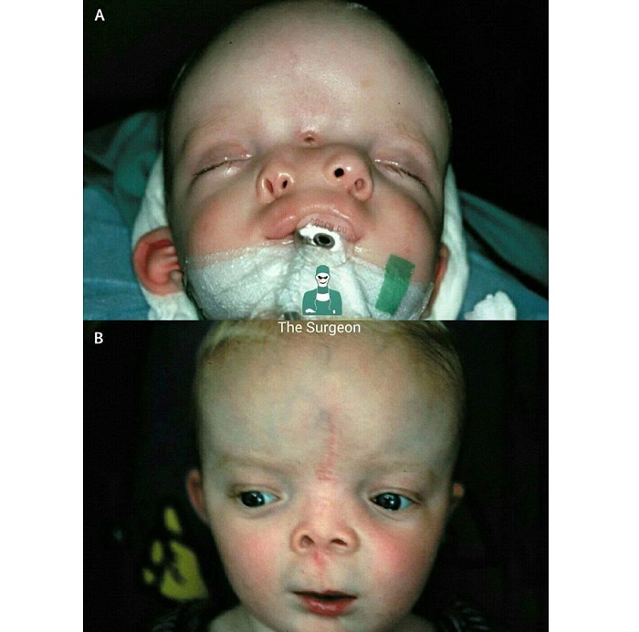 Есть губы, зубы и язык: Девочка родилась со вторым ртом на подбородке