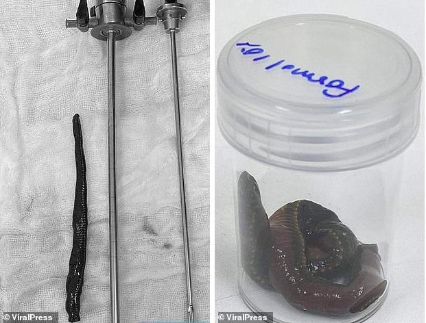 Пиявка залезла в половой орган мужчины и высосала пол-литра крови