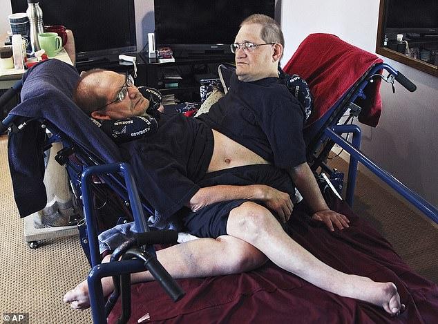 Скончались самые старые сиамские близнецы в мире, у которых было одно тело на двоих
