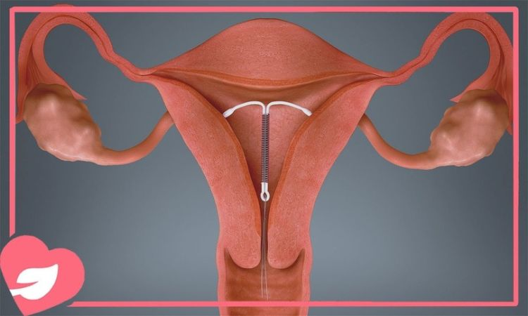 Младенец родился с противозачаточной спиралью